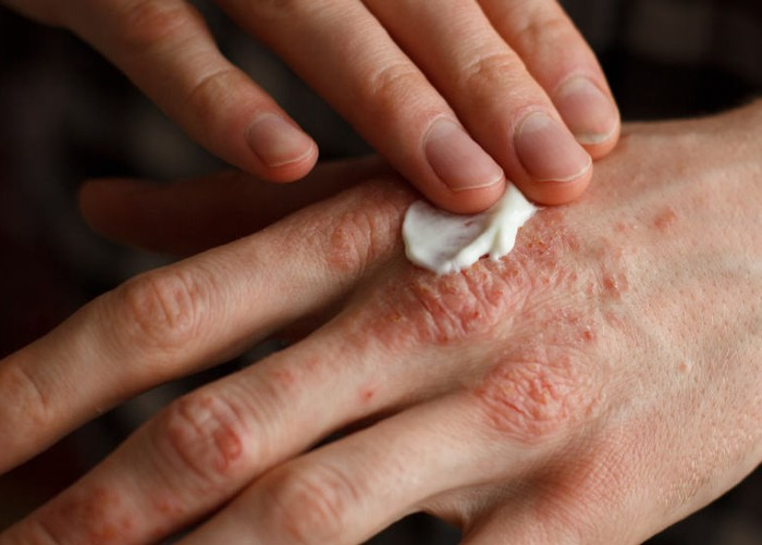 Psoriasis and Cannabis